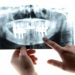 歯の写真1